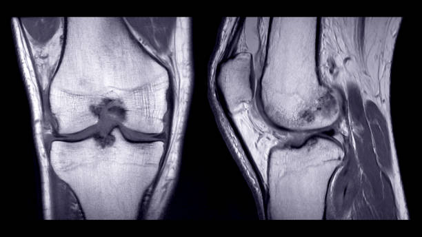 Magnetic resonance imaging or MRI of right knee comparison coronal and sagittal view. Magnetic resonance imaging or MRI of right knee comparison coronal and sagittal view. cartilage stock pictures, royalty-free photos & images
