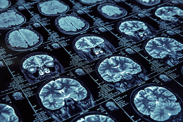 magnetic resonance imaging - diagnostic equipment stock pictures, royalty-free photos & images