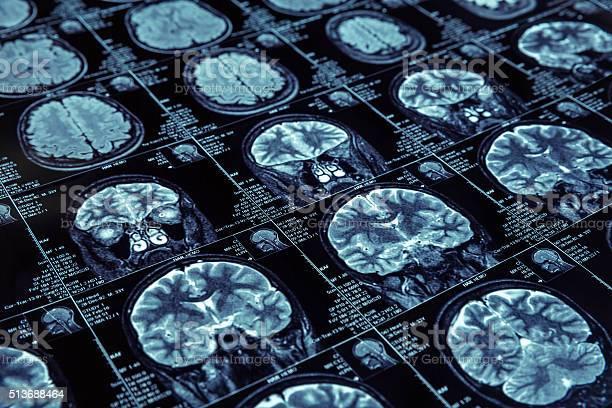 磁気共鳴画像法 - CTのストックフォトや画像を多数ご用意