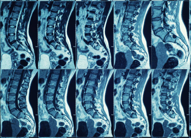 Magnetic resonance imaging (MRI) scan of spine and backbone. Magnetic resonance imaging (MRI) scan of spine and backbone. neurosurgery stock pictures, royalty-free photos & images