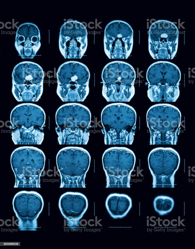 Magnetresonanztomographie Scan Des Gehirns Koronale Ansicht Stock ...