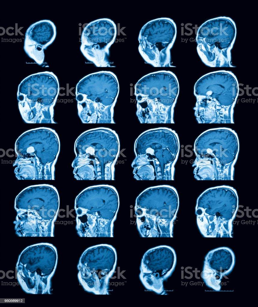 Magnetresonanztomographie Scan Des Gehirns Sagittaler Ansicht Stock ...