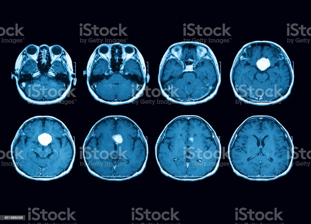 Magnetic resonance imaging (MRI) scan of the brain showing pituitary mass, transverse view stock photo