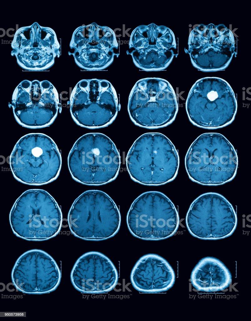 Scan Der Magnetresonanztomographie Des Gehirns Quer Oder Axiale ...