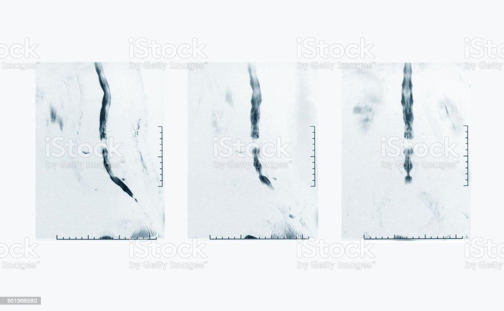 Magnetresonanz Bei L1 Und L4 Wirbelkörper Stock-Fotografie und mehr ...