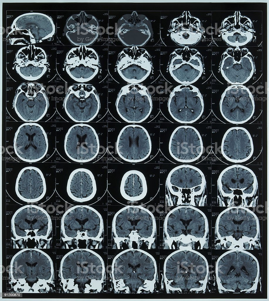 magnetic resonance scan of brain royalty-free stock photo