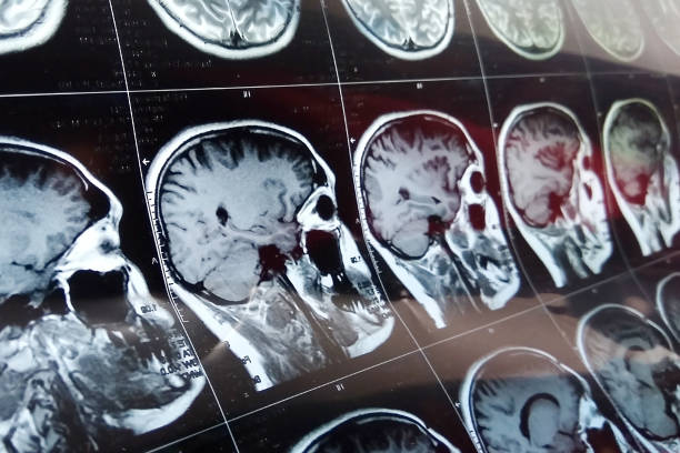 varredura da ressonância magnética do cérebro com crânio. varredura da cabeça de mri na cor escura do azul do fundo - cabeça - fotografias e filmes do acervo