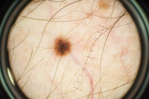 magnification of skin mole through dermatoscope - uneven parallel bars stock photos and pictures