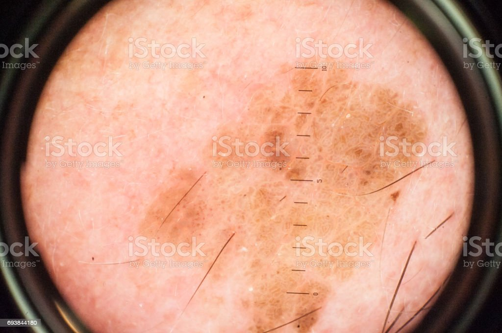 Magnification of Skin Mole through Dermatoscope stock photo