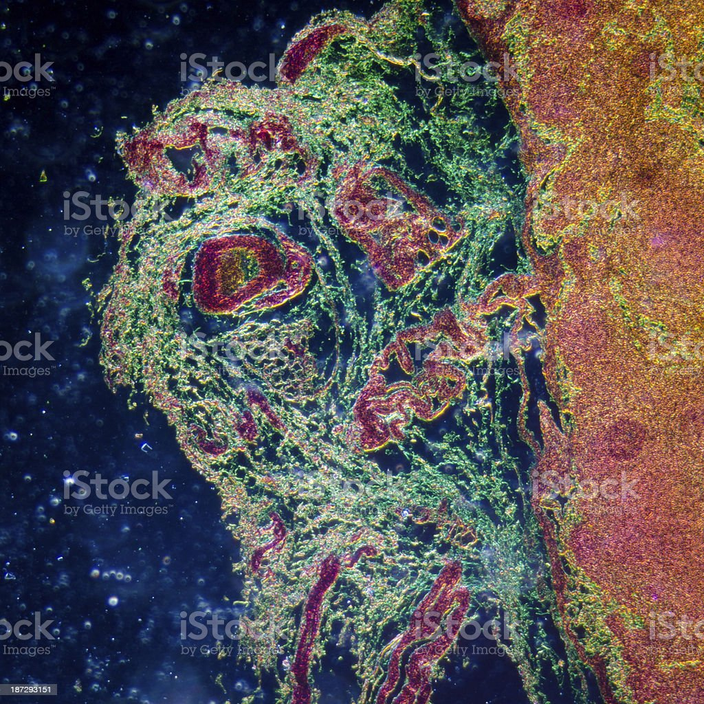 Magnified and artificially dyed slide of lymph gland tissue stock photo