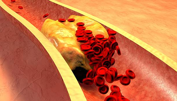 Magnified illustration of a clogged artery with plaque Clogged Artery with platelets and cholesterol plaque, concept for health risk for obesity or dieting and nutrition problems high up stock pictures, royalty-free photos & images