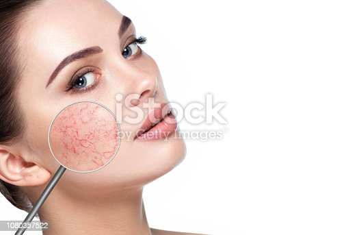 istock magnifying glass showing couperose on womans face 1080357522
