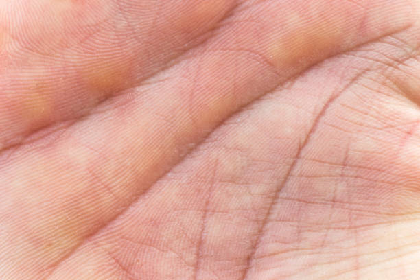 Make Hand Skin Inner Surface Make Hand Skin Inner Surface goosebumps stock pictures, royalty-free photos & images