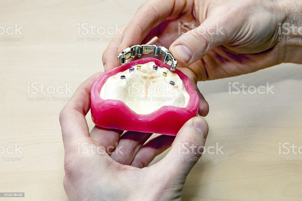 Making Artificial Facial Dental. stock photo
