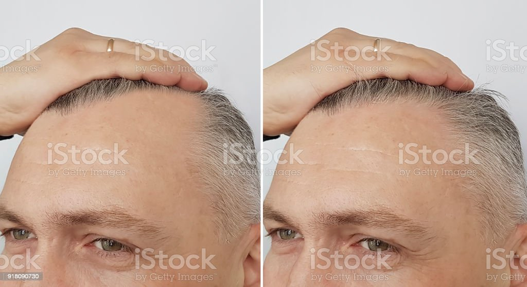 male baldness before and after stock photo