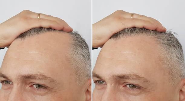 männliche kahlheit vor und nach - glatze schneiden stock-fotos und bilder