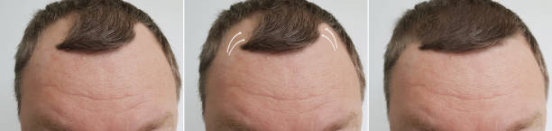 männliche kahlheit vor und nach der behandlung - glatze schneiden stock-fotos und bilder