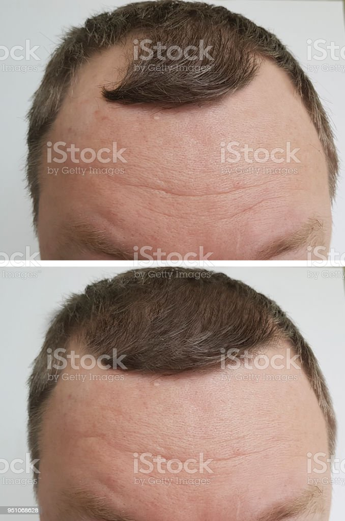 male baldness problem before and after stock photo