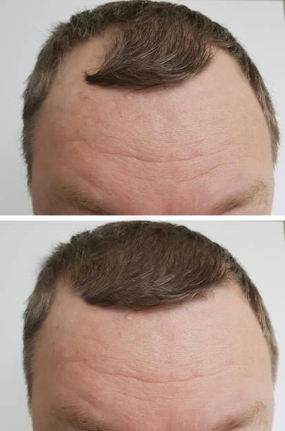 männliche glatzenbildung vor und nach - glatze schneiden stock-fotos und bilder