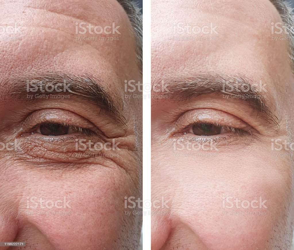 male eye wrinkles before and after treatments
