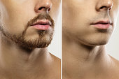 istock Male face with a shaving result 1266590027