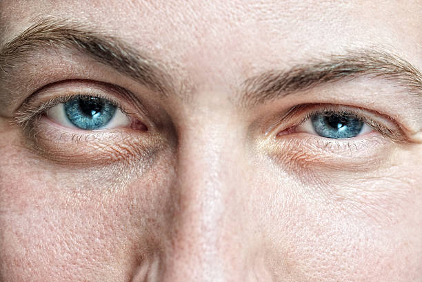 male face with enlarged pores and blue eyes stock photo