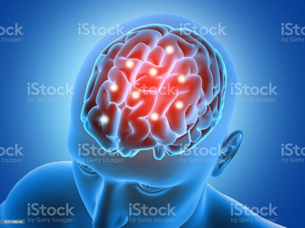 Fotografía de 3d Figura Masculina Con Partes De Cerebro Se Resaltan ...