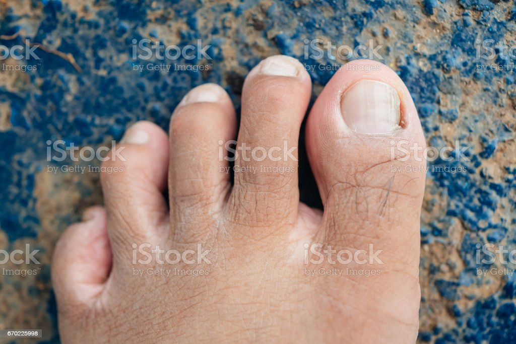 Male foot and toes on steel floor background – Foto
