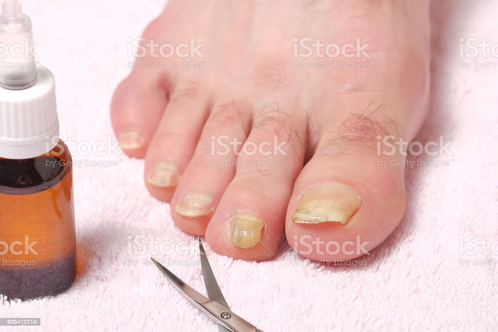 Male Foot Infected With A Nail Fungus Stock Photo & More Pictures of ...