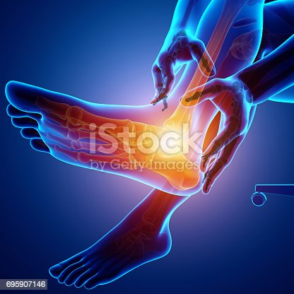 istock Male foot with ankle pain 695907146