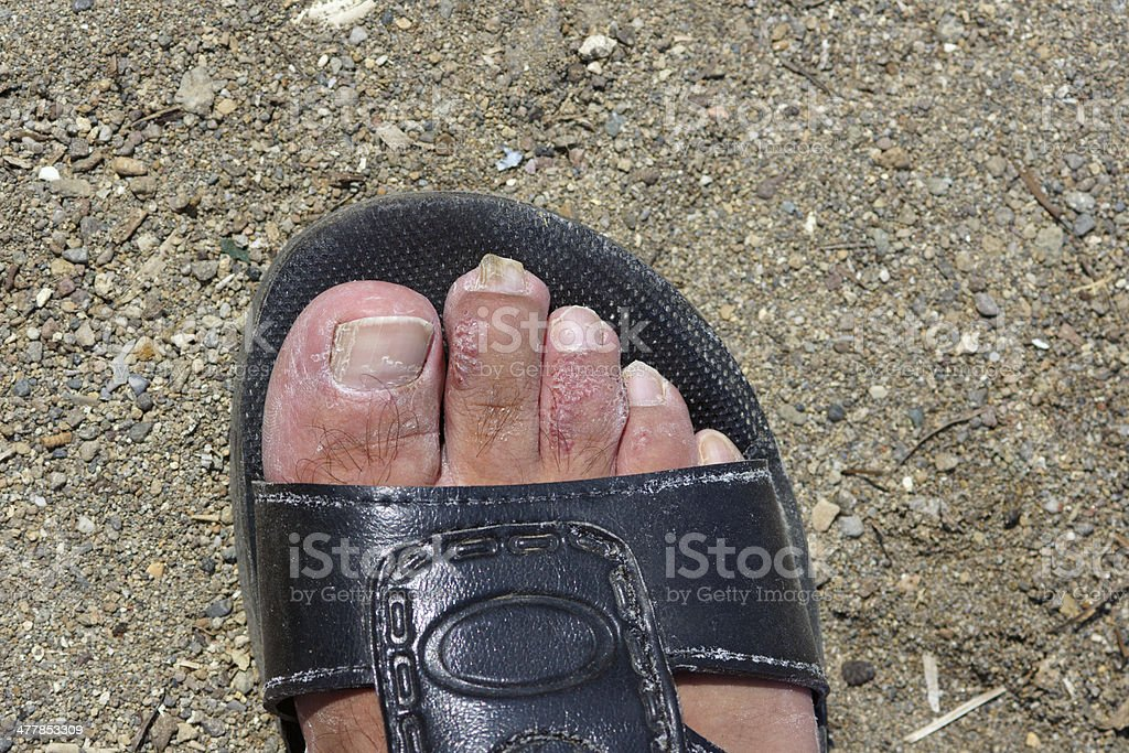 male foot with eczema royalty-free stock photo