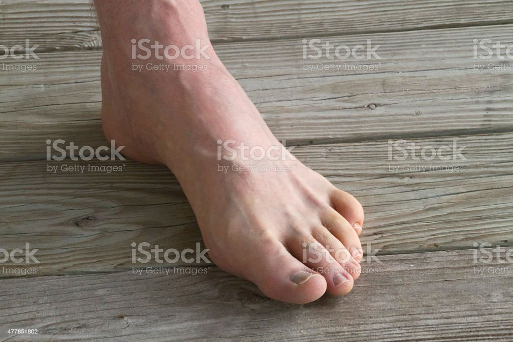 Male Foot With Prominant Veins Stock Photo More Pictures Of 2015