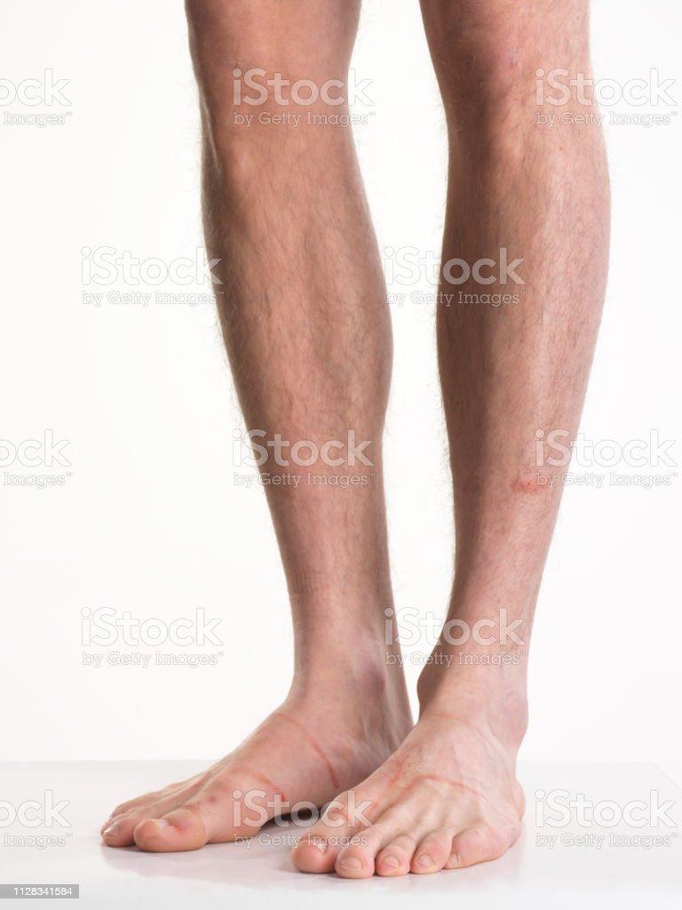 Männliche behaarte Beine isoliert auf weiss – Foto