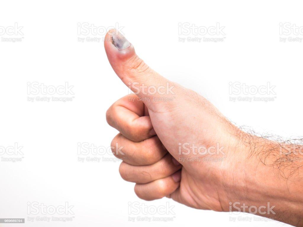Hand blauer fleck Hämatom: Formen,