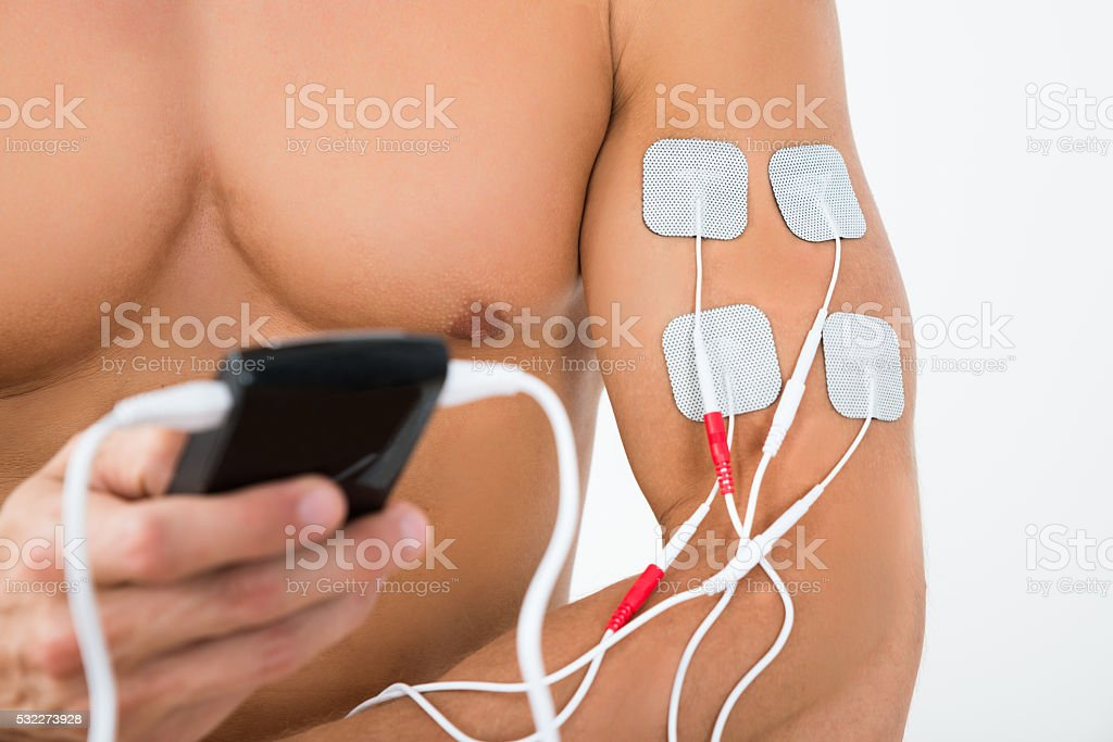 Male Hand With Electrostimulator Electrodes stock photo