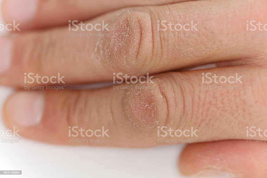 Male hands close up, chapped skin, winter skin care concept stock photo