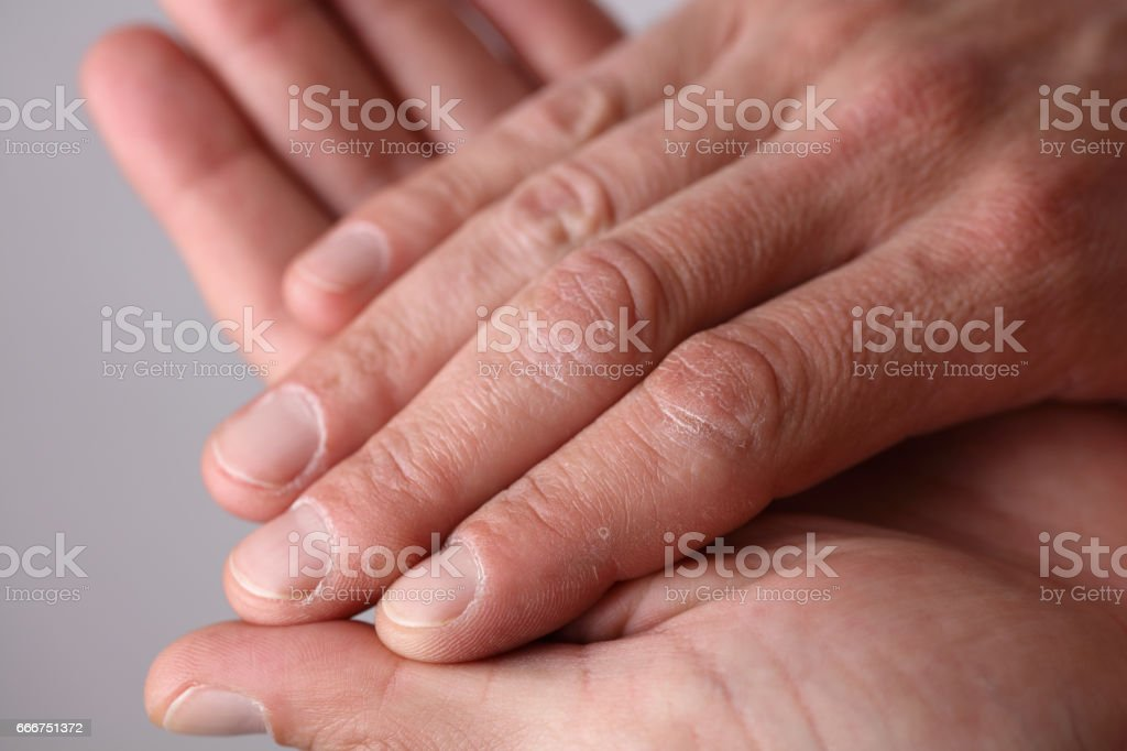 Male hands close up, dry skin, winter skin care concept stock photo