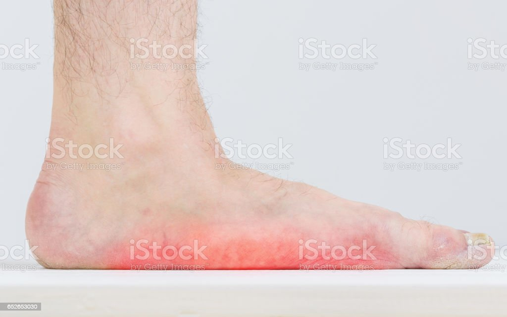 Male leg with strongly pronounced flat feet. - Photo