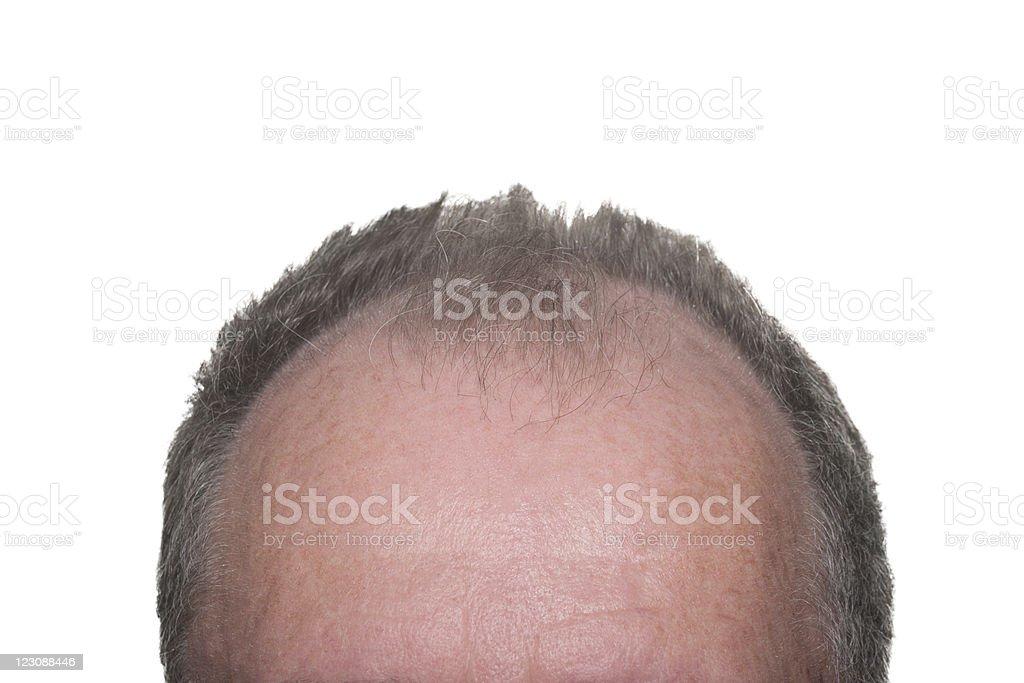 Male Pattern Baldness royalty-free stock photo