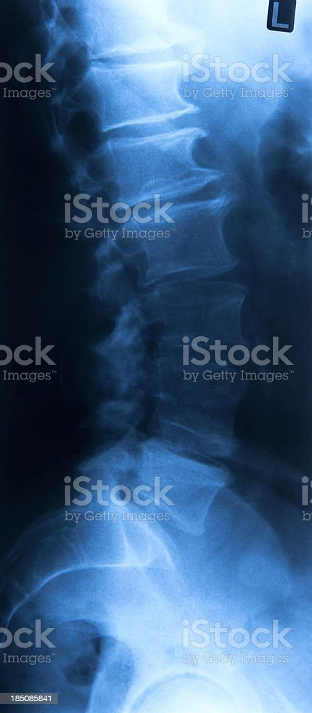Male spine royalty-free stock photo