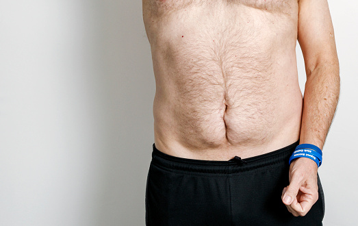cancer muscle abdominal)