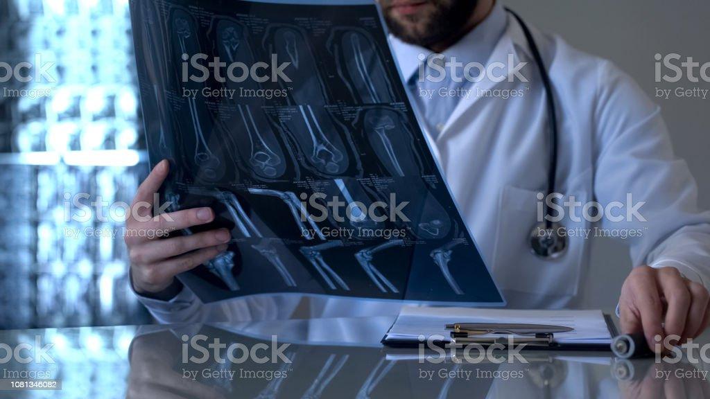 Männliche Patienten Bein Röntgen, Diagnose gesundheitliches Problem betrachten Traumatologe – Foto