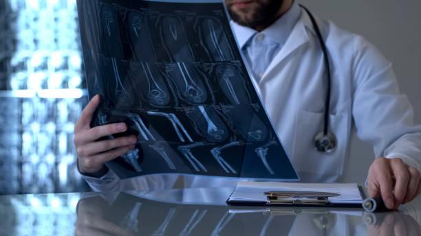 traumatologista macho olhando o raio x da perna do paciente, problema de diagnóstico de saúde - ortopedia - fotografias e filmes do acervo