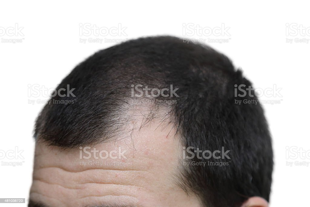 male with hair loss symptoms  on white background stock photo