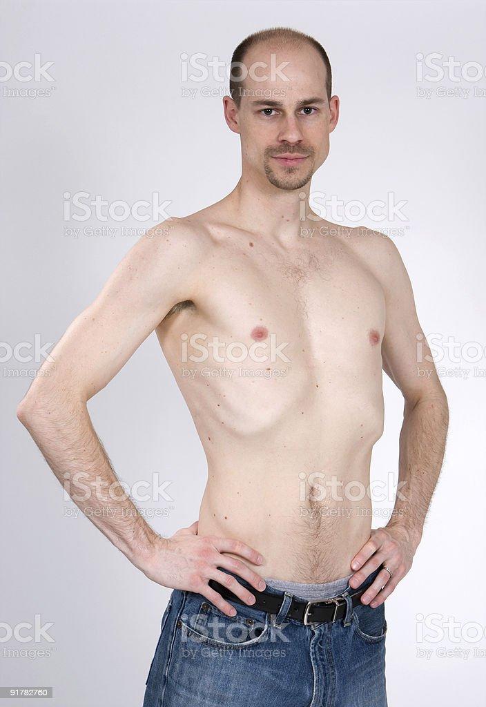 Malnourished man posing shirtless royalty-free stock photo