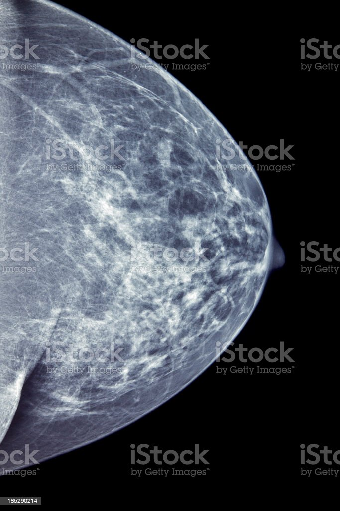 Mammogram for Breast Cancer Diagnosis royalty-free stock photo