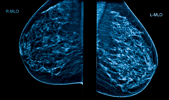 A Mammogram Image Showing Left And Right Breasts Stock Photo - Download Image Now