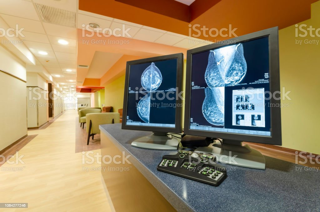 Mammogram images of breasts of a female patient. stock photo