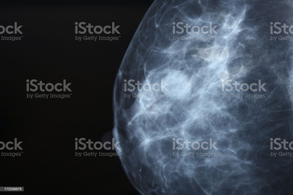 Mammogram stock photo