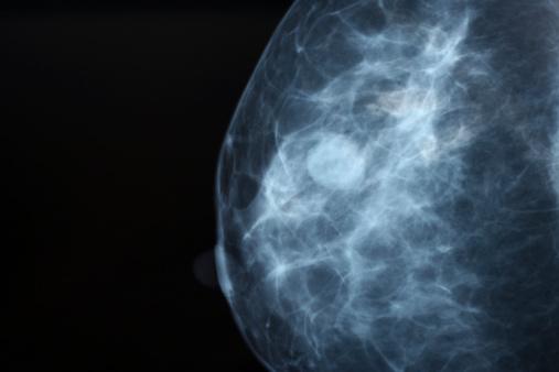 Mamografía Foto de stock y más banco de imágenes de Asistencia sanitaria y medicina